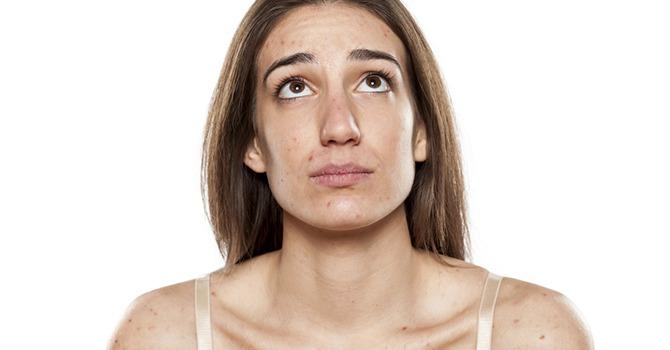 3 Dingen die je Moet Weten Over Acne bij Volwassenen