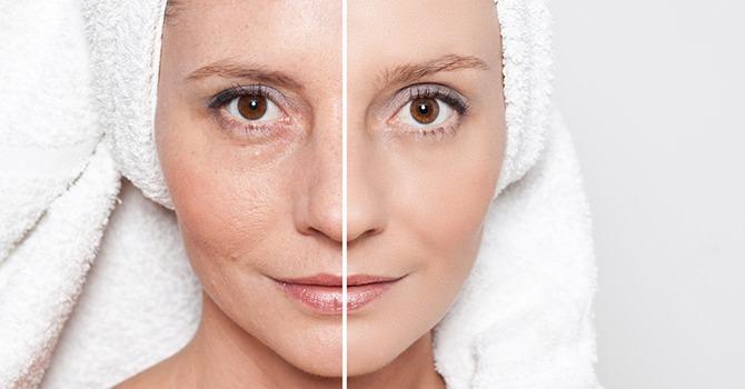 hoe krijg je een gezonde huid