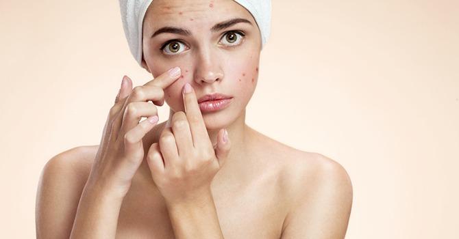 De Beste Tips om Acne Aan te Pakken