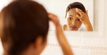 Hoe Je Uitbraken van Acne Kunt Voorkomen