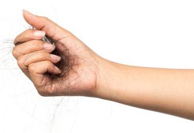 Hoe Kan je Haaruitval aan Banden Leggen