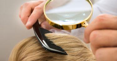 Wat is de oorzaak van jouw haaruitval?