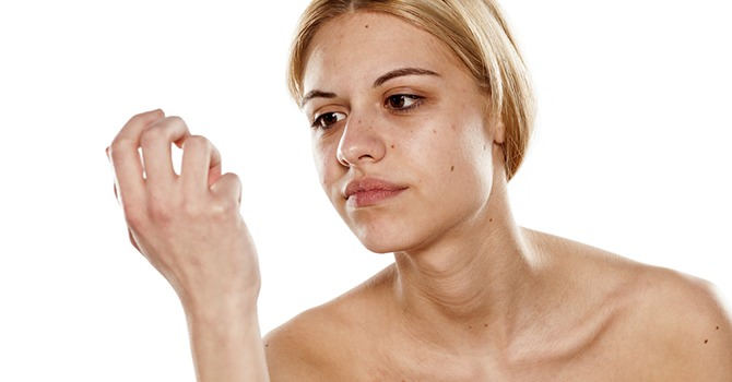 Je Nagels Beschermen tegen Afwijkingen
