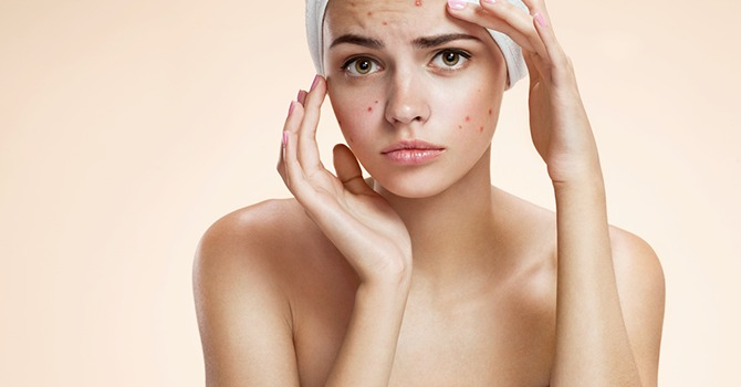 Jouw Opties voor de Behandeling van Acne