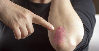 Kan Sporten Uitbraken van Psoriasis Voorkomen?