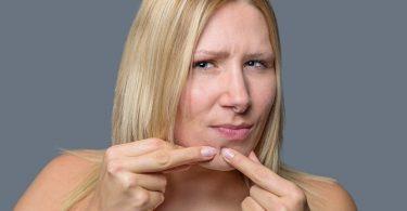 Meer Te Weten Komen over de Oorzaken van Acne