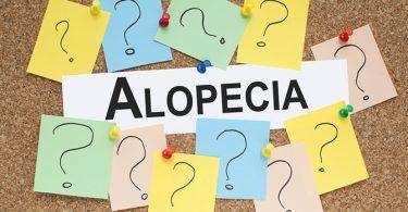 Onderzoek Geeft Hoop voor Mensen met Alopecia Areata