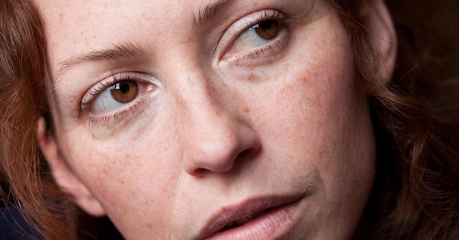 Oplossingen voor de gevoelige huid en leeftijdgerelateerde roodheid
