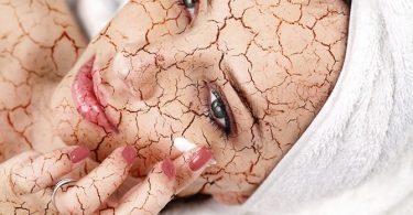 Top 3 Tips voor Verlichting van de Droge Huid