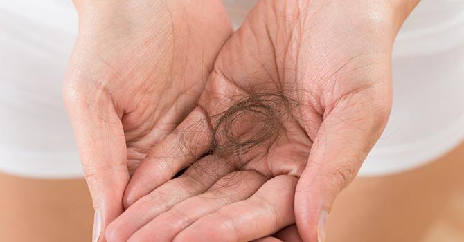Oplossingen Voor Haarverlies: Wat Zijn Je Opties?