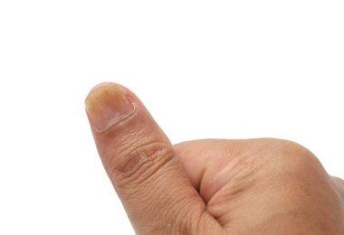 Wat je Moet Weten Over Psoriatische Nagelziekte